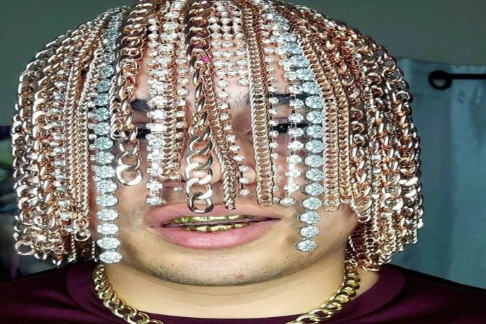 american rapper golden chains implanted in head surgically2 - Trishul News Gujarati Breaking News photo viral, viral